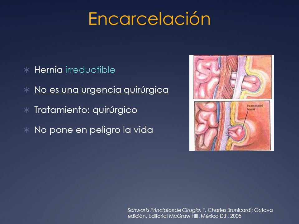 Encarcelación Hernia irreductible No es una urgencia quirúrgica