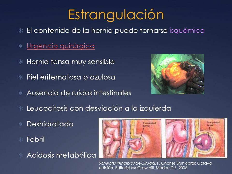 Estrangulación El contenido de la hernia puede tornarse isquémico