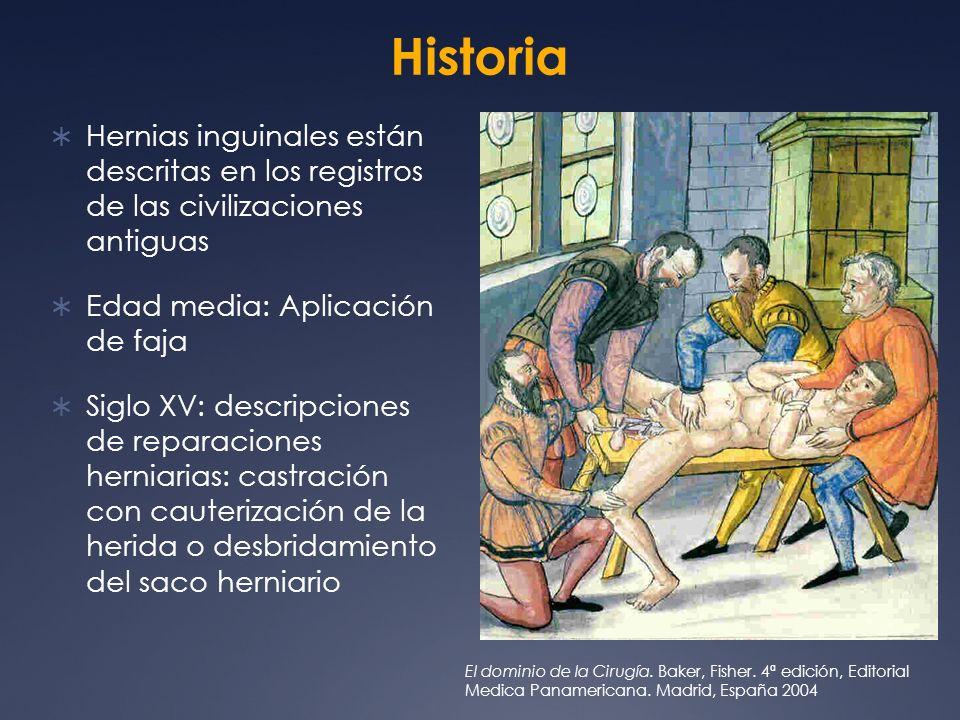 Historia Hernias inguinales están descritas en los registros de las civilizaciones antiguas. Edad media: Aplicación de faja.