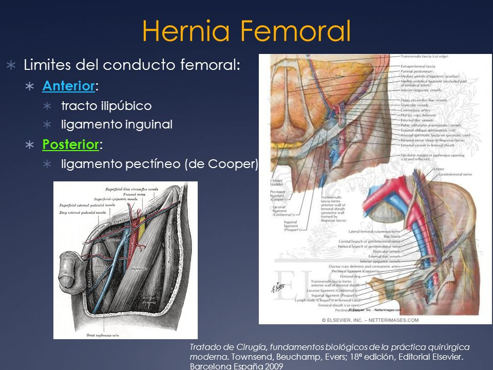 Hernia Femoral Limites del conducto femoral: Anterior: Posterior: