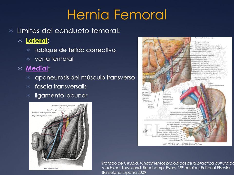 Hernia Femoral Limites del conducto femoral: Lateral: Medial: