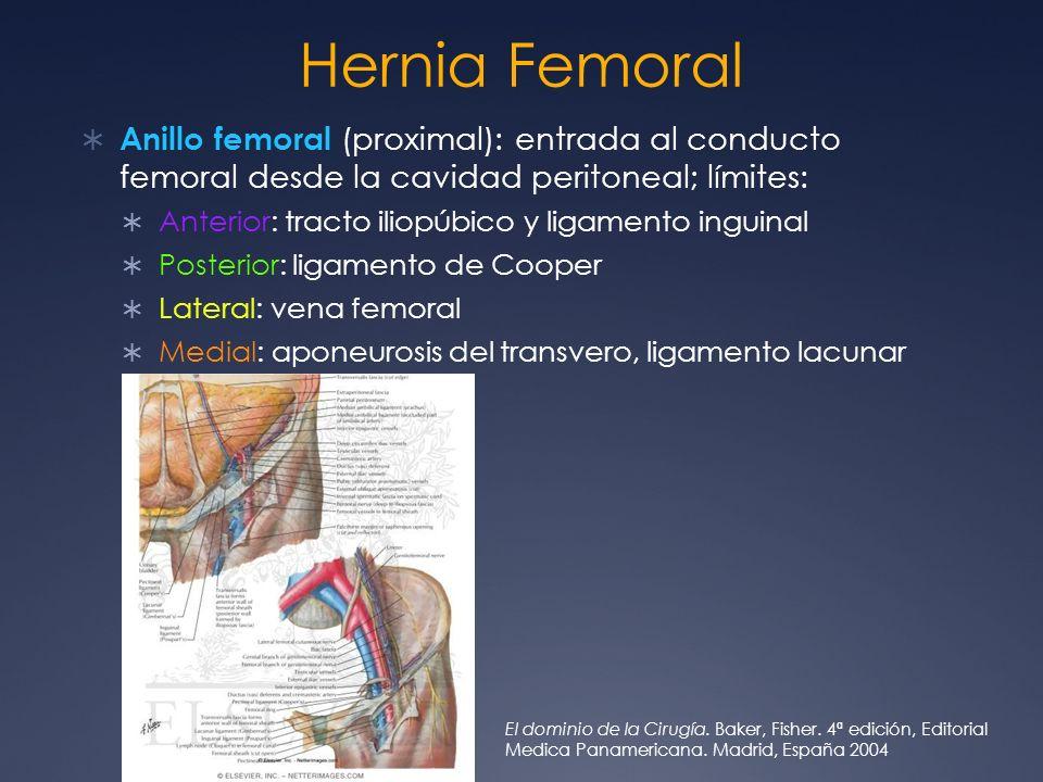 Hernia Femoral Anillo femoral (proximal): entrada al conducto femoral desde la cavidad peritoneal; límites: