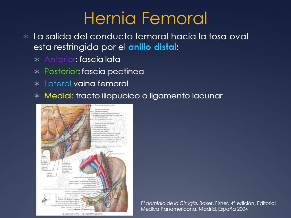 Hernia FemoralLa salida del conducto femoral hacia la fosa oval esta restringida por el anillo distal: