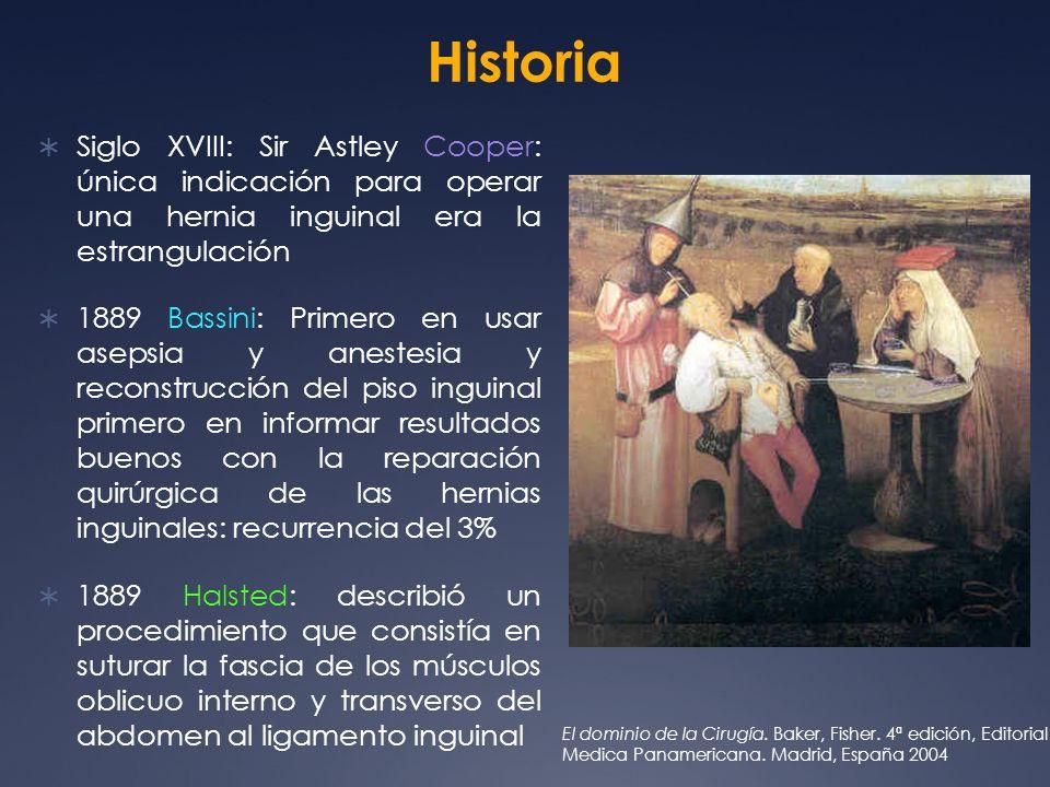 Historia Siglo XVIII: Sir Astley Cooper: única indicación para operar una hernia inguinal era la estrangulación.