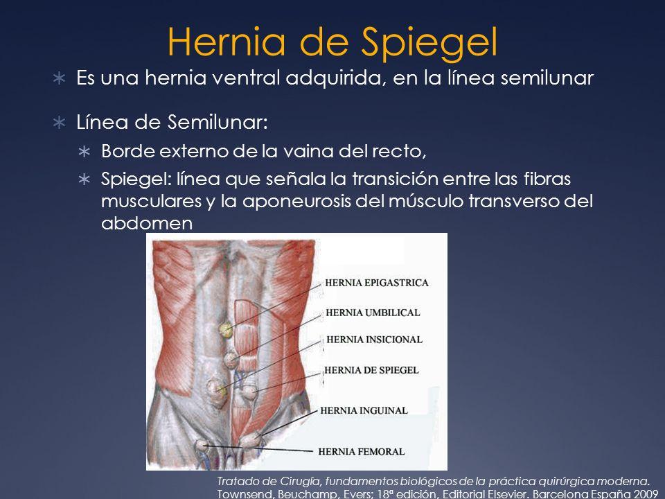 Hernia de SpiegelEs una hernia ventral adquirida, en la línea semilunar. Línea de Semilunar: Borde externo de la vaina del recto,