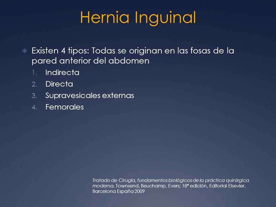 Hernia InguinalExisten 4 tipos: Todas se originan en las fosas de la pared anterior del abdomen. Indirecta.