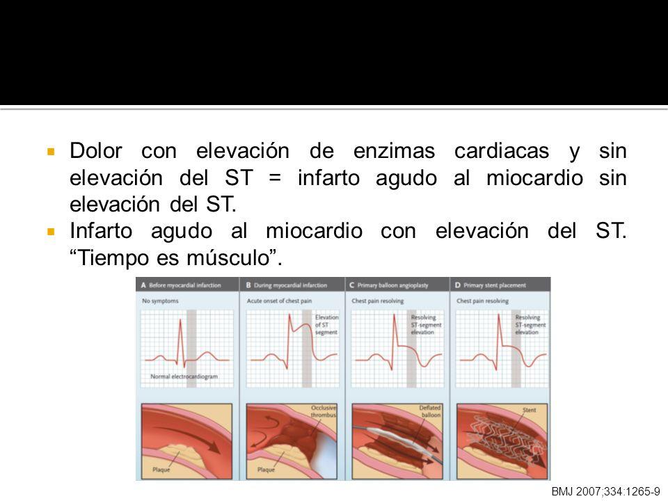 Infarto agudo al miocardio con elevación del ST. Tiempo es músculo .