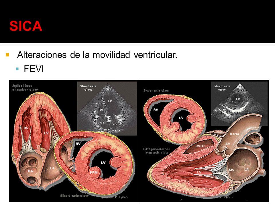 SICA Alteraciones de la movilidad ventricular. FEVI