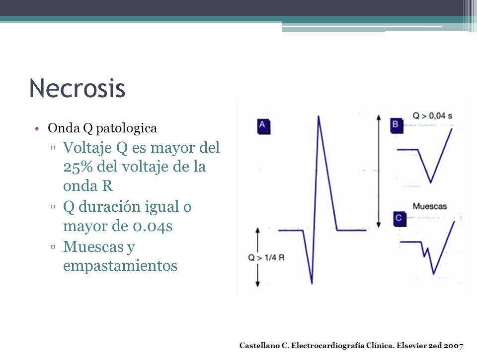 Necrosis Voltaje Q es mayor del 25% del voltaje de la onda R