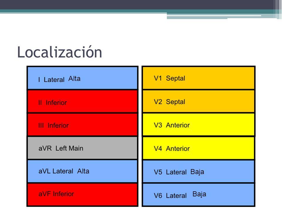 Localización Alta Alta Baja Baja