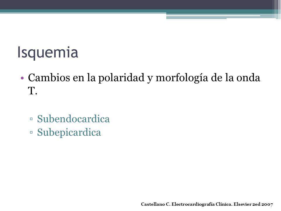 Isquemia Cambios en la polaridad y morfología de la onda T.