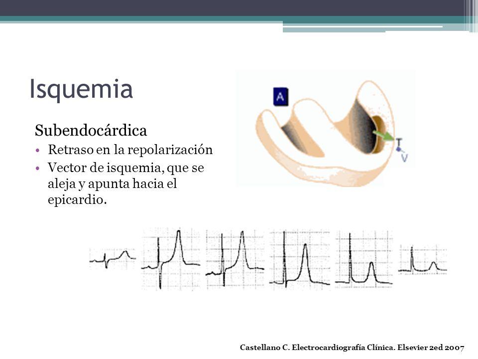 Isquemia Subendocárdica Retraso en la repolarización
