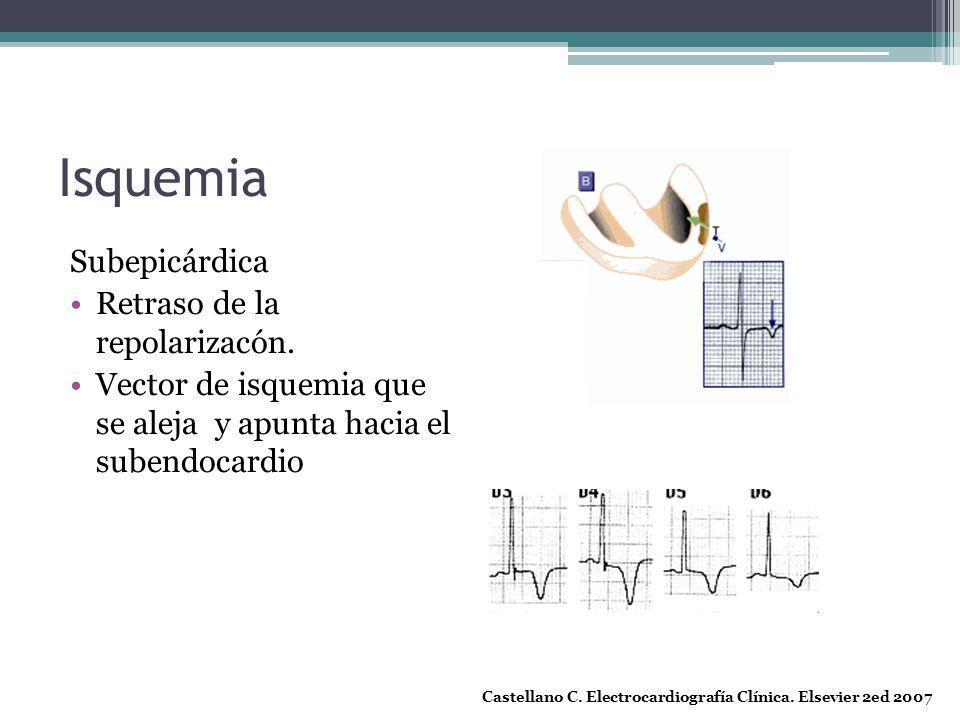 Isquemia Subepicárdica Retraso de la repolarizacón.