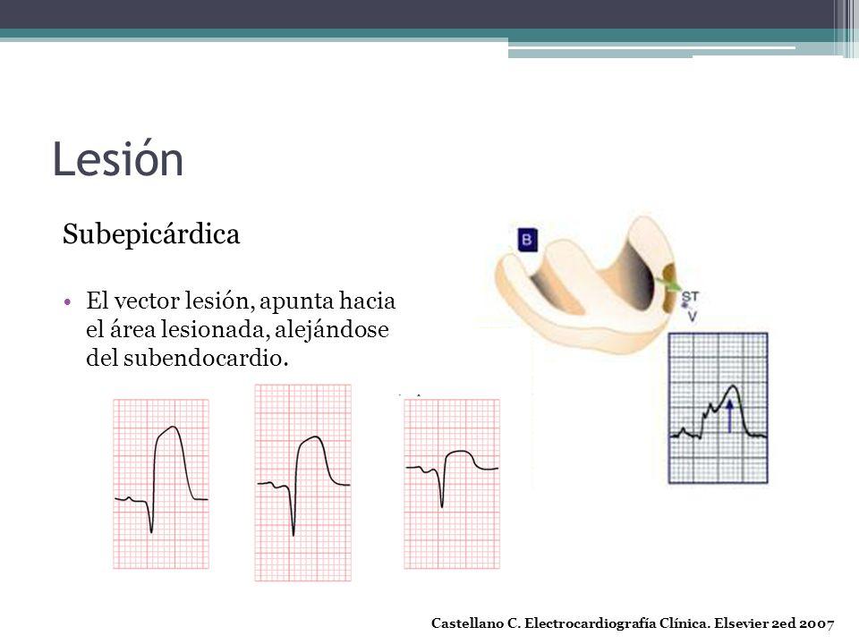 Lesión Subepicárdica. El vector lesión, apunta hacia el área lesionada, alejándose del subendocardio.