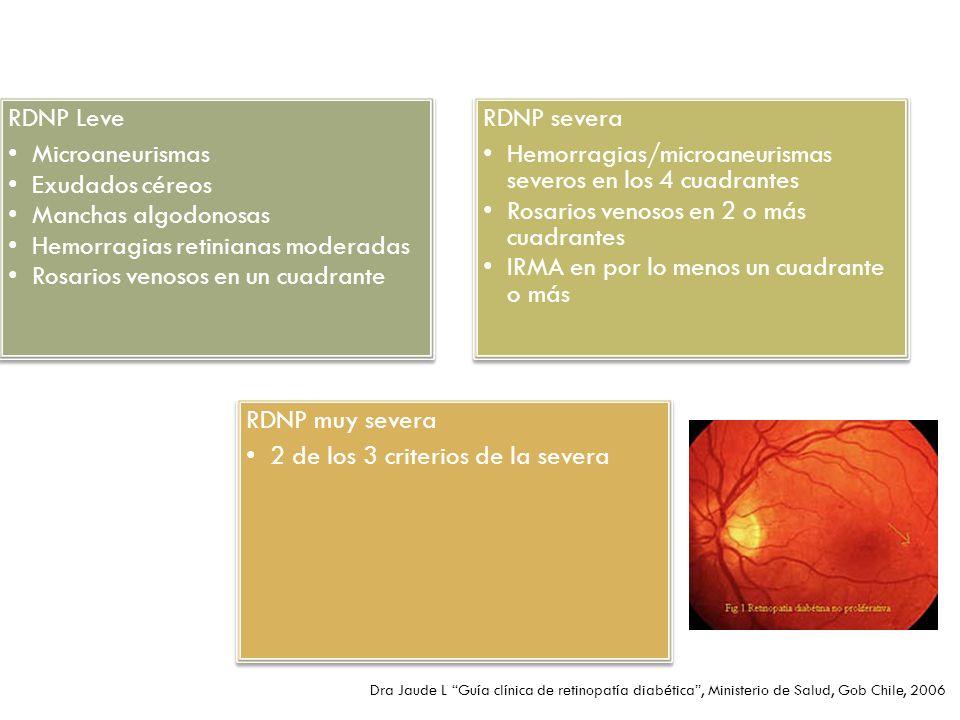Hemorragias retinianas moderadas Rosarios venosos en un cuadrante