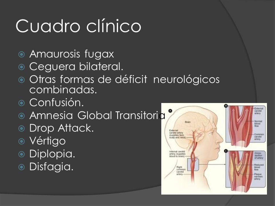 Cuadro clínico Amaurosis fugax Ceguera bilateral.