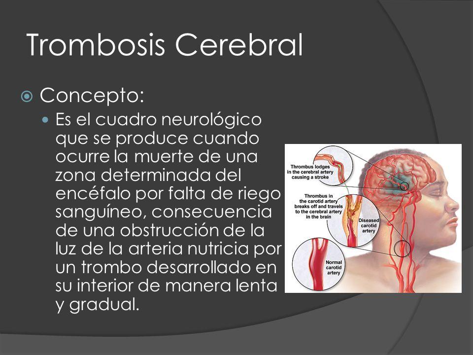 Trombosis Cerebral Concepto: