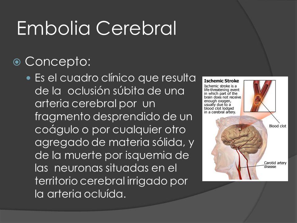 Embolia Cerebral Concepto: