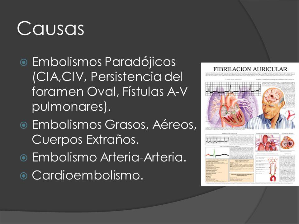CausasEmbolismos Paradójicos (CIA,CIV, Persistencia del foramen Oval, Fístulas A-V pulmonares). Embolismos Grasos, Aéreos, Cuerpos Extraños.