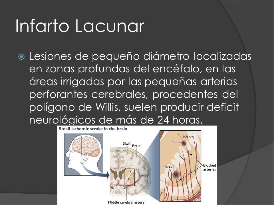 Infarto Lacunar