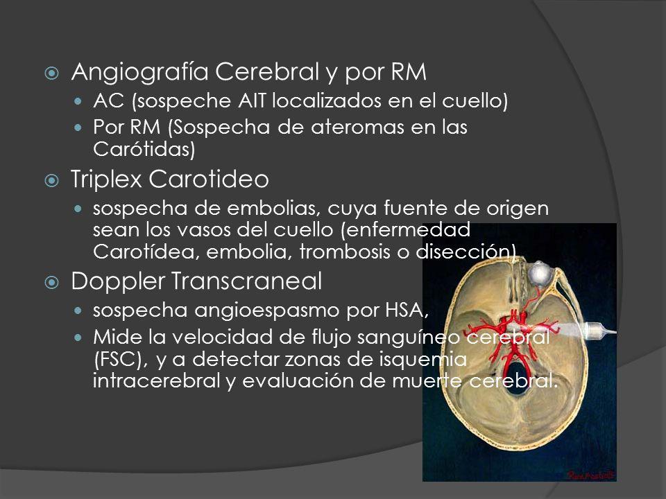 Angiografía Cerebral y por RM