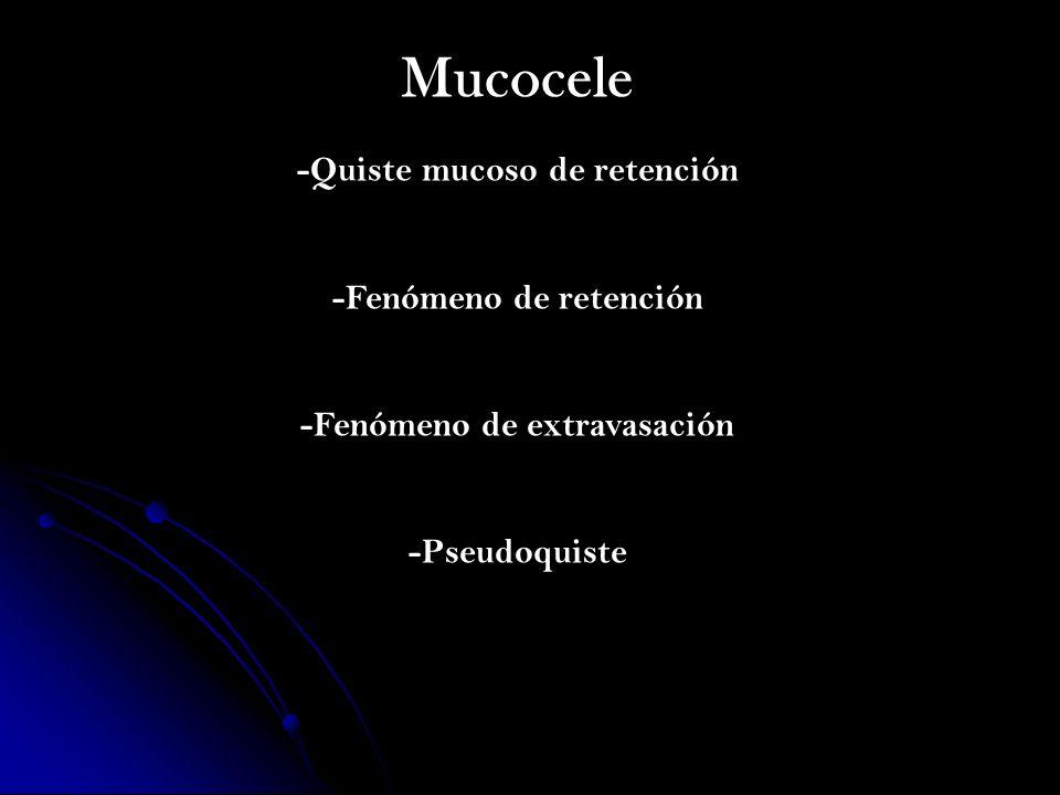 Mucocele -Quiste mucoso de retención -Fenómeno de retención