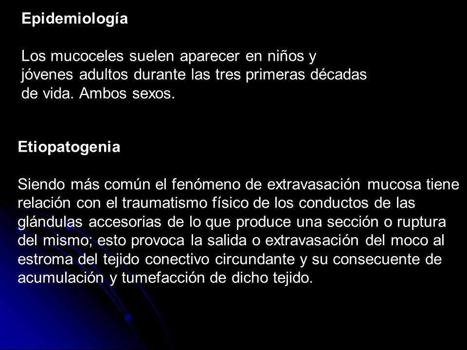 EpidemiologíaLos mucoceles suelen aparecer en niños y jóvenes adultos durante las tres primeras décadas de vida. Ambos sexos.