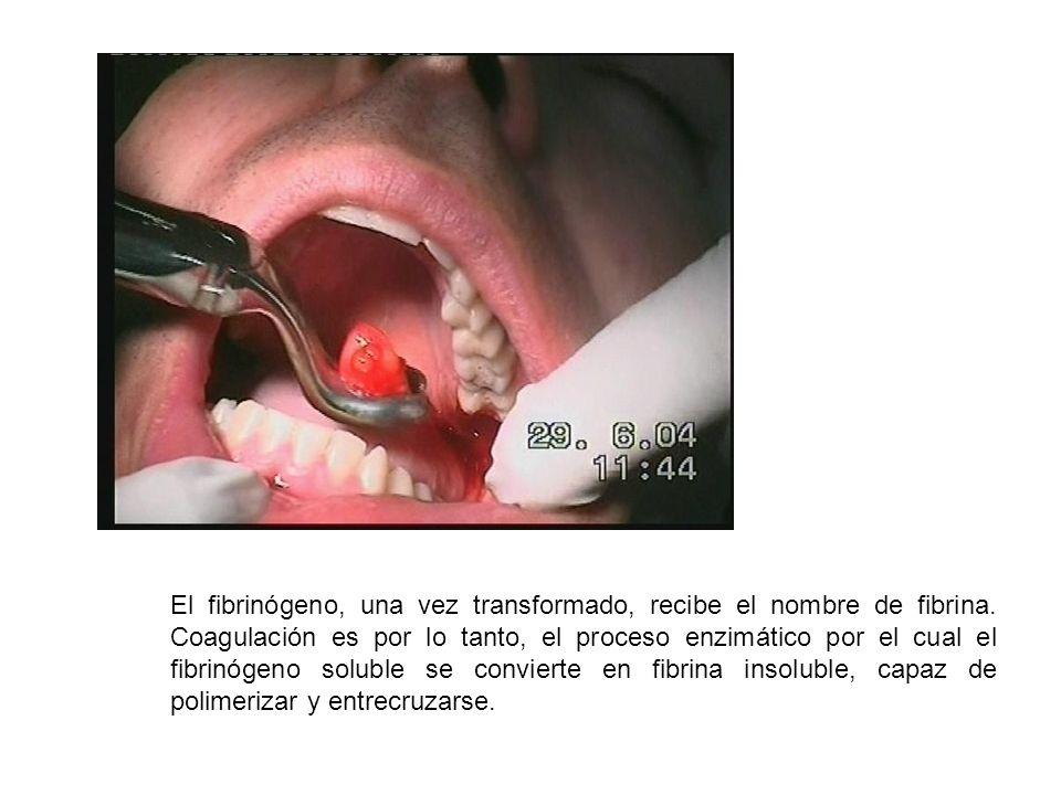 El fibrinógeno, una vez transformado, recibe el nombre de fibrina