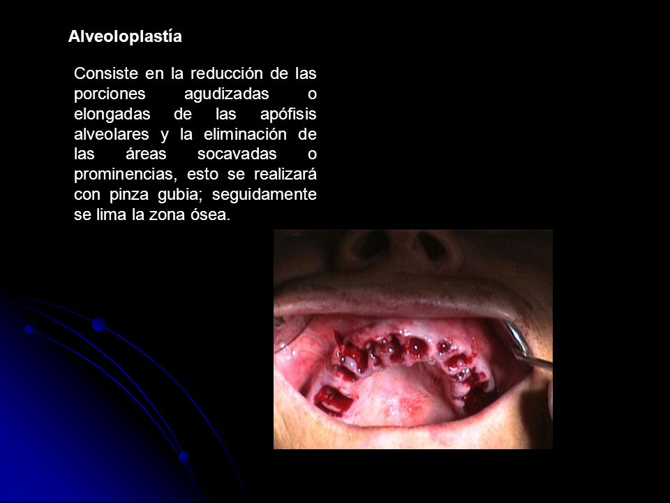 Alveoloplastía