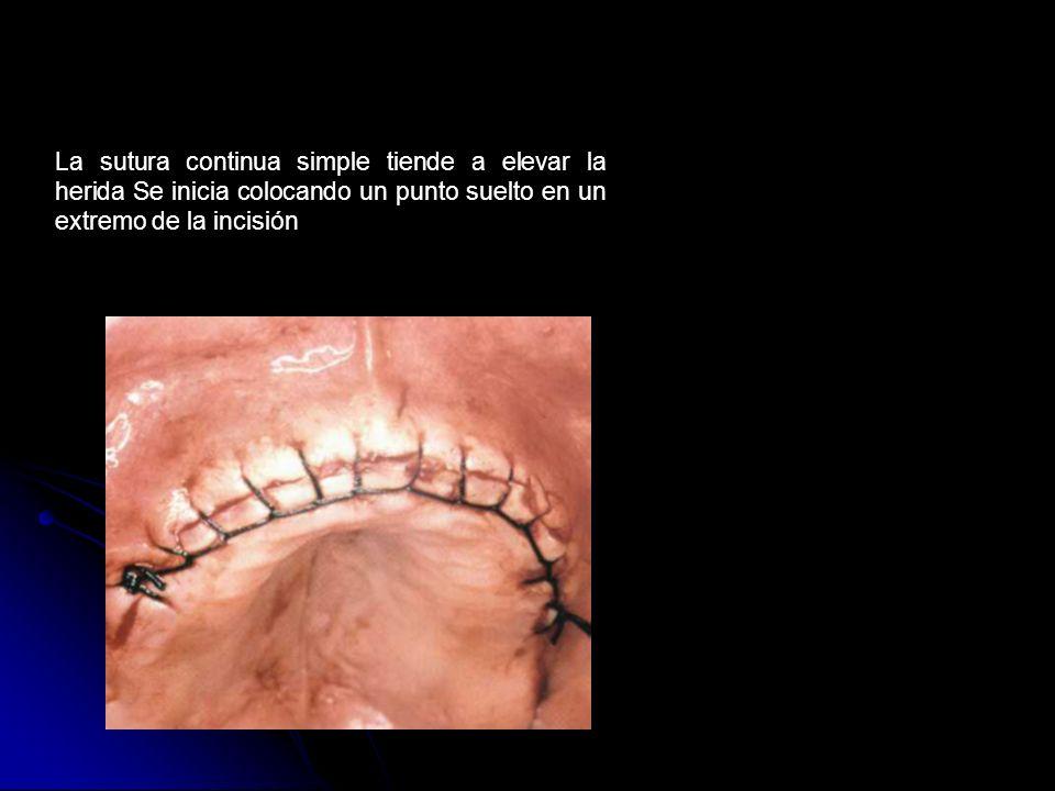 La sutura continua simple tiende a elevar la herida Se inicia colocando un punto suelto en un extremo de la incisión