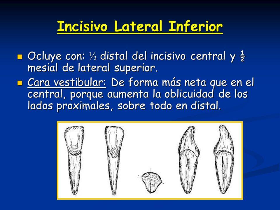 Incisivo Lateral Inferior