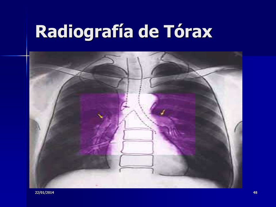 Radiografía de Tórax 24/03/2017