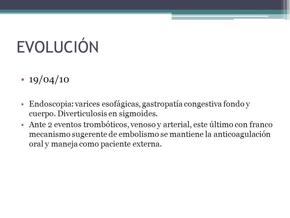 EVOLUCIÓN 19/04/10. Endoscopia: varices esofágicas, gastropatía congestiva fondo y cuerpo. Diverticulosis en sigmoides.