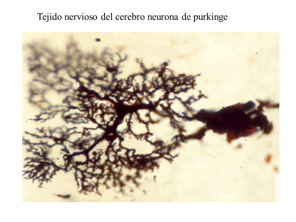 Tejido nervioso del cerebro neurona de purkinge