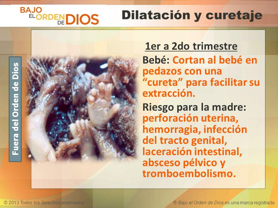 Dilatación y curetaje 1er a 2do trimestre. Bebé: Cortan al bebé en pedazos con una cureta para facilitar su extracción.