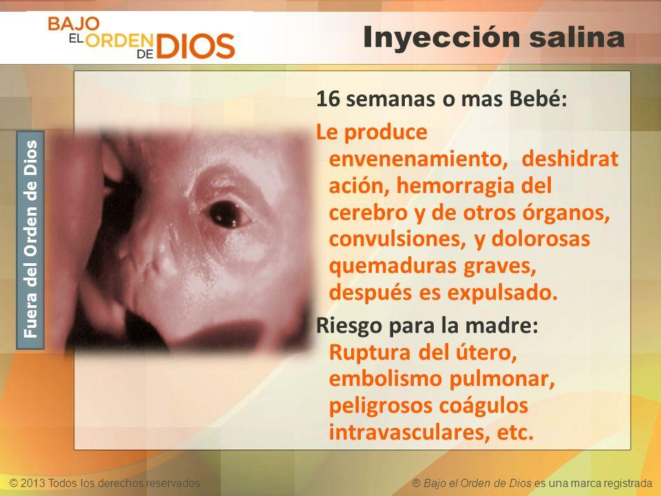 Inyección salina