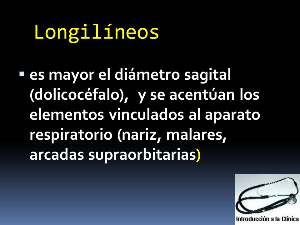 Longilíneos