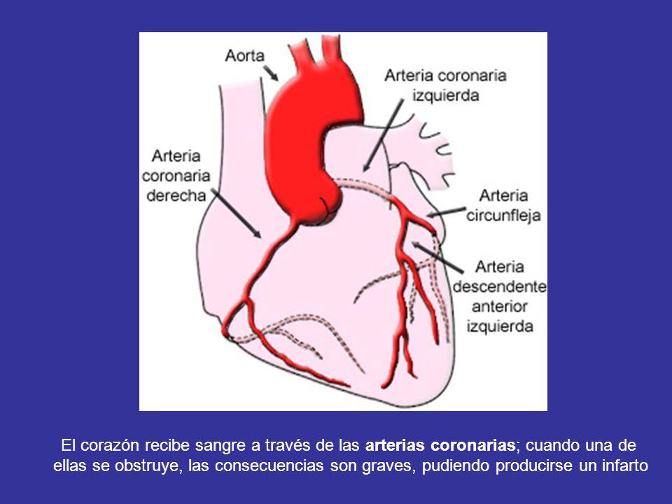 El corazón recibe sangre a través de las arterias coronarias; cuando una de