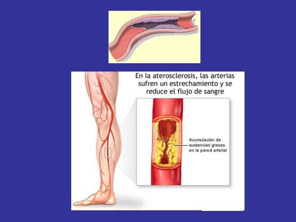 Con el paso de los años las arterias se van endureciendo y, en muchas ocasiones, estrechando.