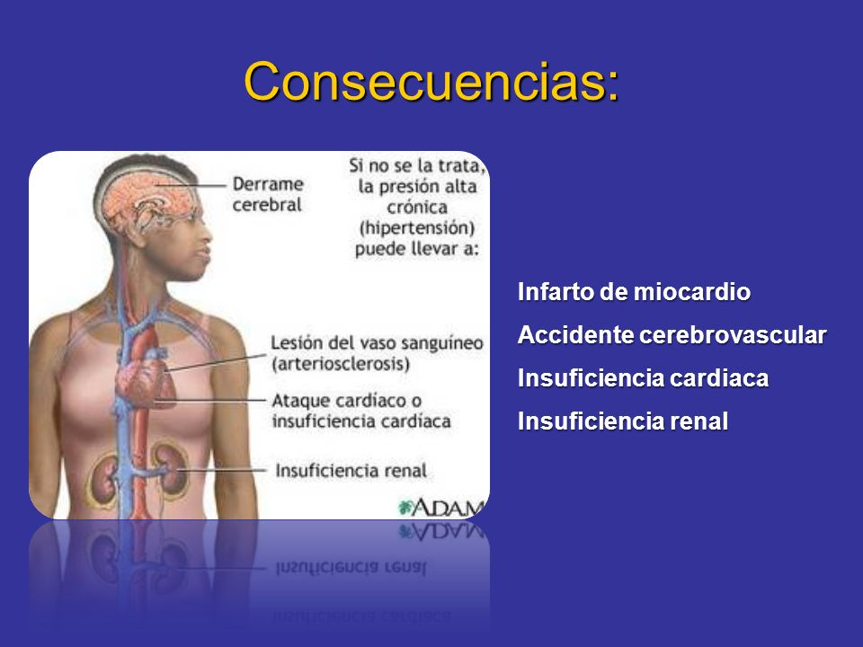 Consecuencias: Infarto de miocardio Accidente cerebrovascular