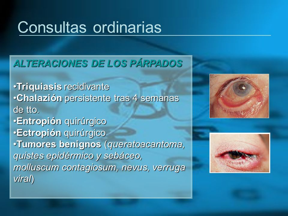 Consultas ordinarias ALTERACIONES DE LOS PÁRPADOS