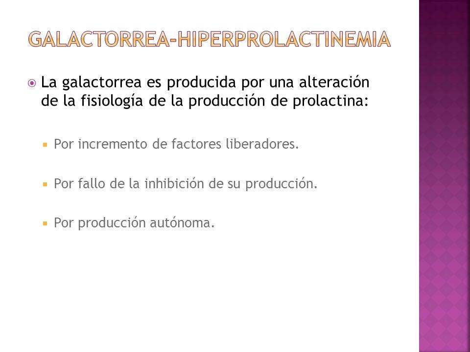 Galactorrea-hiperprolactinemia