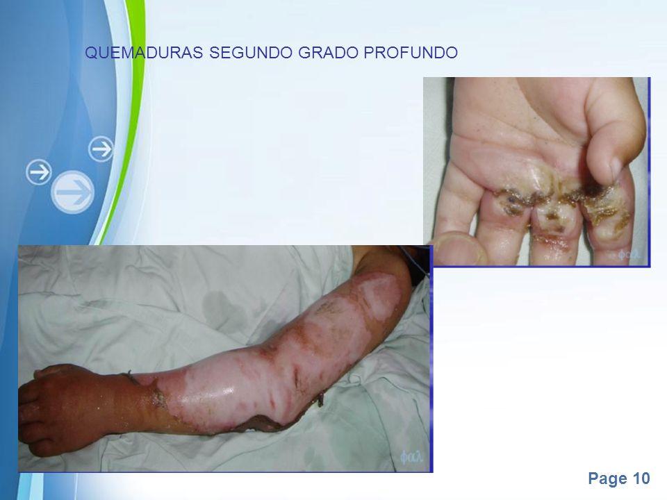 QUEMADURAS SEGUNDO GRADO PROFUNDO