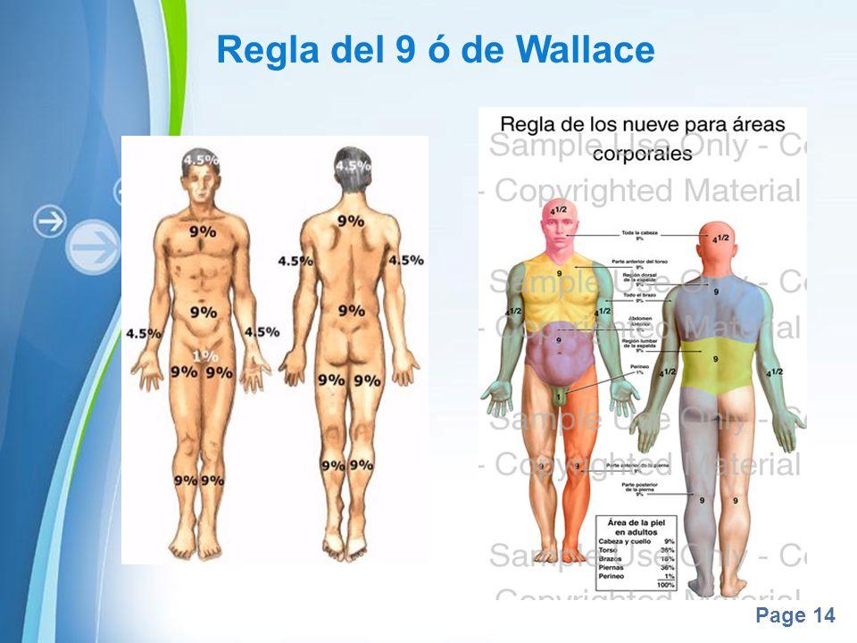 Regla del 9 ó de Wallace