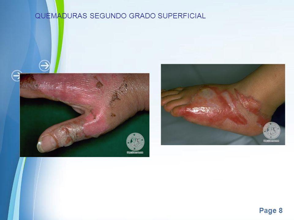 QUEMADURAS SEGUNDO GRADO SUPERFICIAL