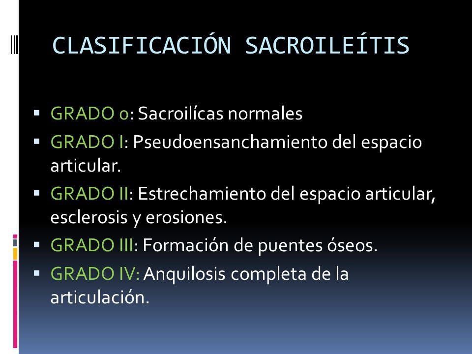 CLASIFICACIÓN SACROILEÍTIS