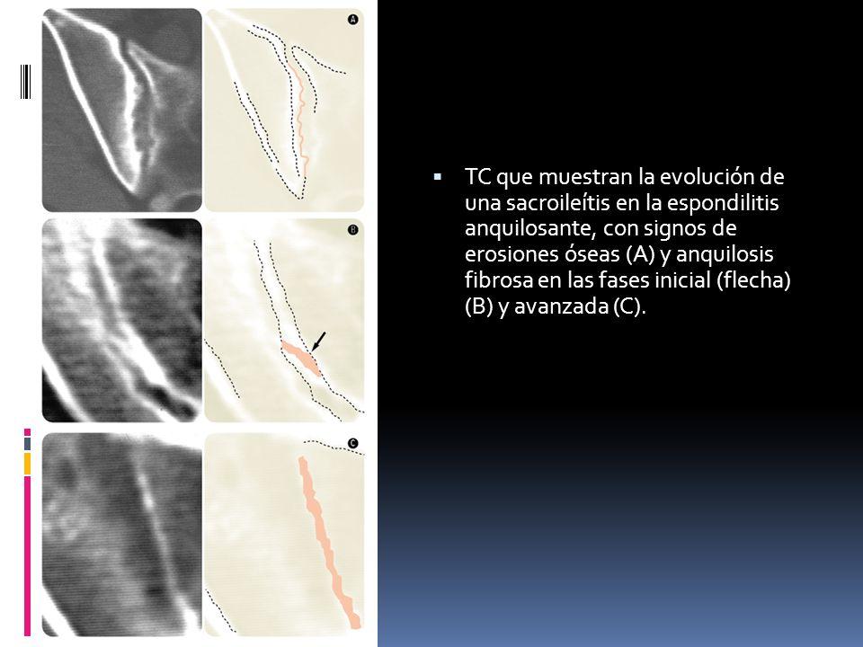 TC que muestran la evolución de una sacroileítis en la espondilitis anquilosante, con signos de erosiones óseas (A) y anquilosis fibrosa en las fases inicial (flecha) (B) y avanzada (C).