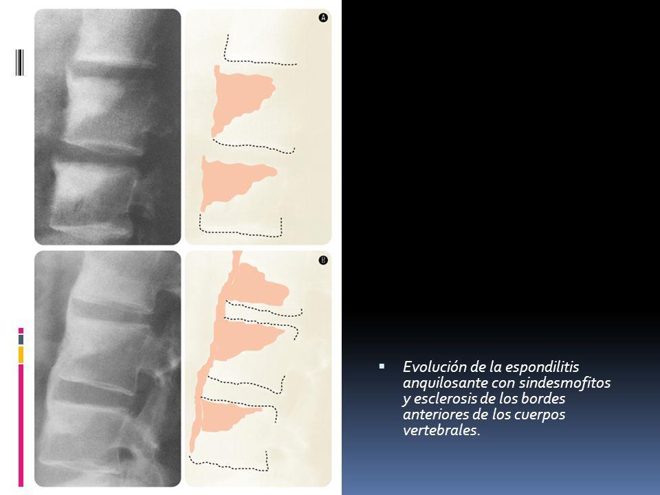 Evolución de la espondilitis anquilosante con sindesmofitos y esclerosis de los bordes anteriores de los cuerpos vertebrales.