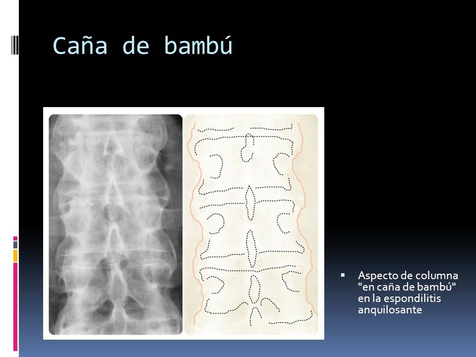 Caña de bambú Aspecto de columna en caña de bambú en la espondilitis anquilosante
