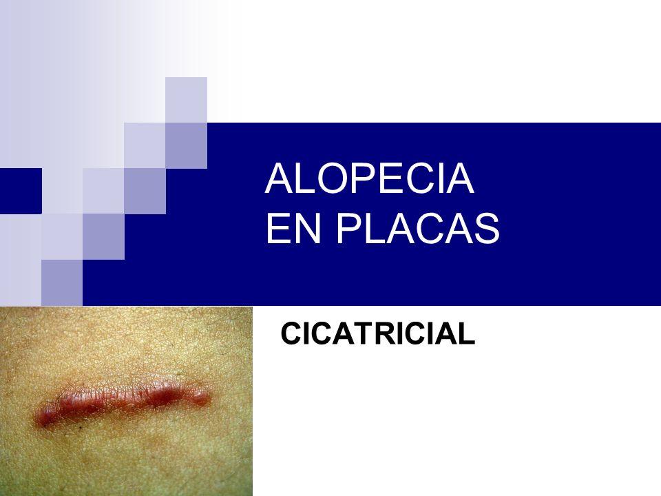 ALOPECIA EN PLACAS CICATRICIAL